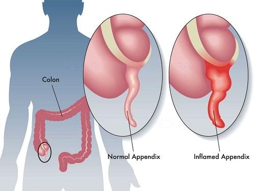 Đau bụng dưới bị bệnh gì